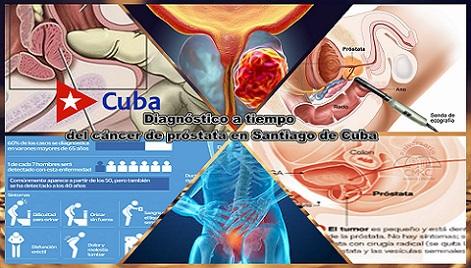 Se puede diagnosticar a tiempo el cáncer de próstata en Santiago de Cuba
