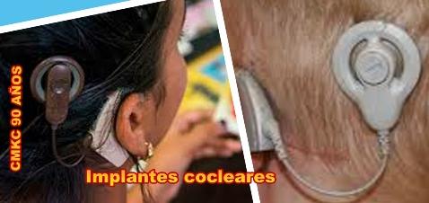 Gana experiencia Santiago de Cuba en los implantes cocleares