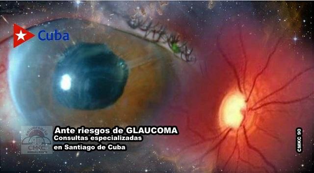 Ante riesgos de Glaucoma, especialistas en Santiago de Cuba tienen respuestas actualizadas. Foto: Santiago Romero Chang