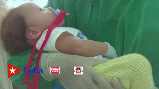 Santiago de Cuba: edades pediátricas entre las más sensibles a Covid-19