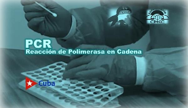 PCR, es la abreviatura de Reacción de Polimerasa en Cadena. Imagen WEB: Santiago Romero Chang